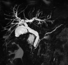 Patient exploré par bili-IRM pour une suspicion de migration lithiasique