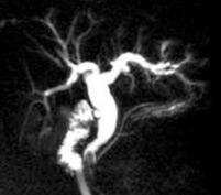 Recherche de calculs résiduels chez une patiente cholécystectomisée
