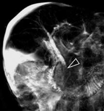 Sclérose hépato-portale avec ascite