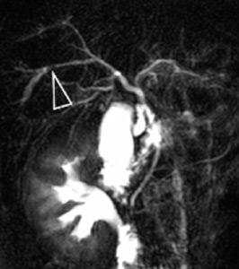 Lithiases intrahépatiques en bili-IRM