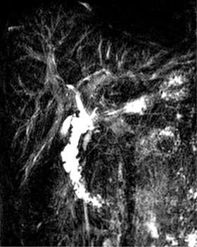 Intérêt du gadolinium pour l'exploration des cholangites sclérosantes primitives