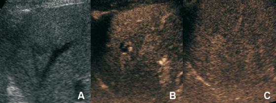 Figure 3a 3b et 3c