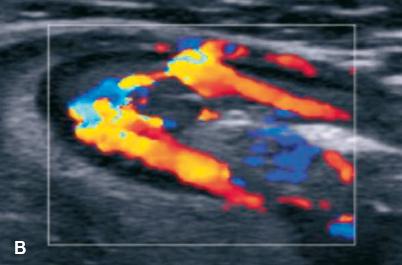 Échographie Doppler en coupe longitudinale montrant une hypervascularisation de la paroi digestive