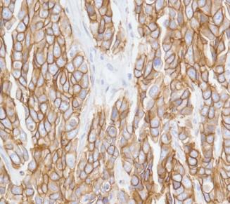 Expression membranaire forte et diffuse en immunohistochimie d'HER2 dans un adénocarcinome de l'estomac