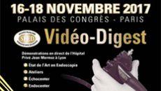 VideoDigest