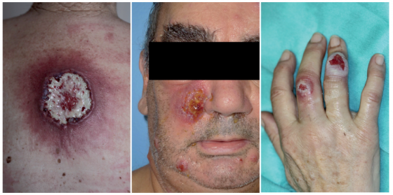 Figure 3. Dermatose neutrophilique : pyoderma gangrenosum (à gauche), syndrome de Sweet bulleux et pustuleux (au centre et à droite)