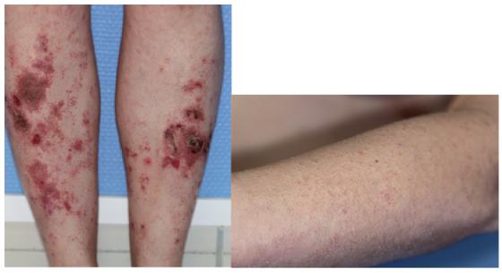 Figure 5. Dermatose carentielle au cours d'une maladie de Crohn : Ecchymoses sur les zones de frottement et hyperkératose péri-folliculaire.