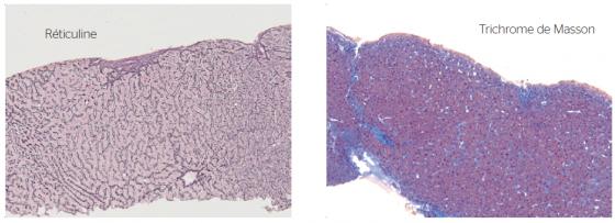 Figure 4. Hyperplasie nodulaire régénérative avec une fibrose portale faible, des images focales de fibrose des veines centro lodulaire et une nodulation hépatocytaire (collection Pr Selves, anatomopathologie CHU Toulouse)