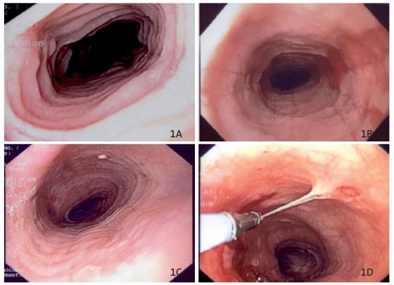 Figure 1. Aspects endoscopiques d'oesophagite à éosinophiles. A : Aspect pseudotrachéal B : Sillons longitudinaux ; C : Exsudats (dépôt blanchâtre) associés à des sillons et un aspect pseudo-trachéal (moins marqué qu'en A) ; D : décollements muqueux lors les biopsies réalisant une oesophagite disséquante