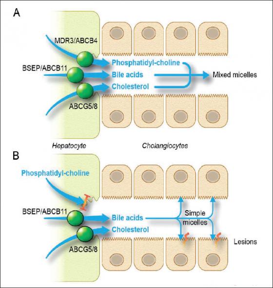 Figure 1. (A) Les transporteurs des acides biliaires, du cholestérol et de la phosphatidyl-choline (le principal phospholipide biliaire) à travers la membrane canaliculaire des hépatocytes sont normaux. Il se forme des micelles mixtes qui permettent la solubilisation du cholestérol. (B) Quand le transporteur des phospholipides, la protéine MDR3 codée par ABCB4, est déficient, les acides biliaires sont transportés sans phospholipides et vont ainsi former de simples micelles qui n'ont pas la capacité de solubilisation du cholestérol. Il va alors se former des micro-cristaux et des calculs de cholestérol. De plus, les acides biliaires transportés sans phospholipides ont un effet détergent qui va endommager les cholangiocytes adjacents