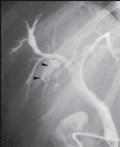 Figure 5. Dilatation sacculaire des voies biliaires intra-hépatiques autour de macro-calculs sans sténose biliaire sous-jacente (têtes de flèche)