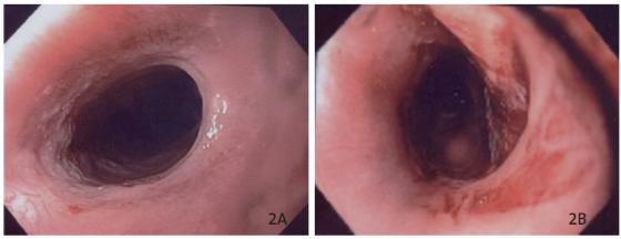Figure 2. Sténose oesophagienne avant (A) et après dilatation au ballonnet de 18 mm (B). Noter l'aspect de dilacération de la muqueuse après dilatation