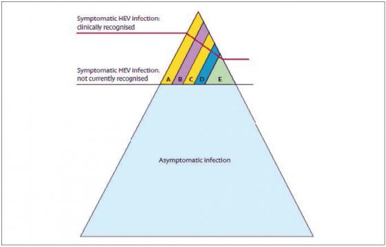 Figure 8. La plupart des infections VHE de génotype 3 et 4 sont asymptomatiques ou non diagnostiquées. Quand elles sont diagnostiquées (A) Infection aiguë ictérique (B) Infection chronique (C) Contexte de toxicité médicamenteuse (D) Manifestations neurologiques (E) Autres manifestations extra-hépatiques ; d'après (Kamar et al., 2012a)
