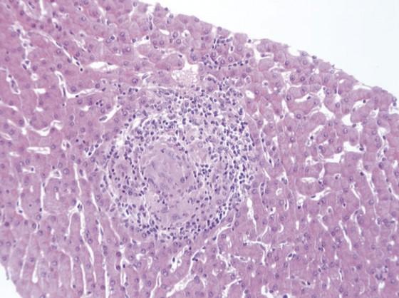 Figure 5. Coupe anatomopathologique d'une hépatite granulomateuse révélant une sarcoïdose