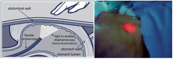 Les techniques per-endoscopiques Figure 1