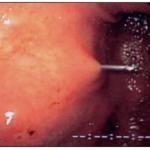 Les techniques per-endoscopiques Figure 2