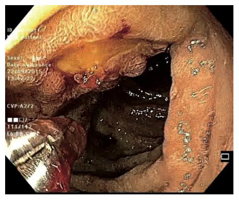 Figure 2. Pose de clips sur un ulcère Forrest IIa duodénal