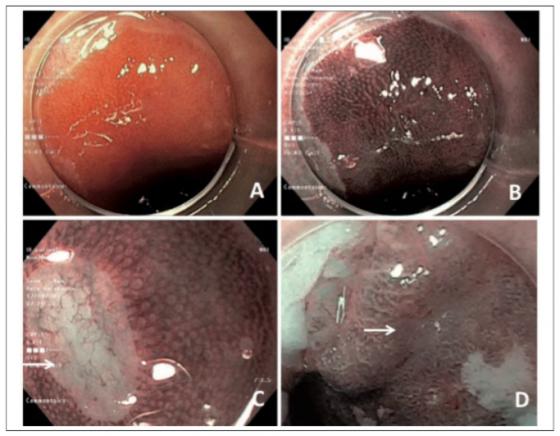 Figure 4. Examen d'un endobrachyœsophage