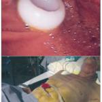 Les techniques per-endoscopiques Figure 5