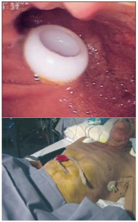 Gastrostomies Indications Techniques Et Surveillance