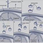 Les techniques per-endoscopiques Figure 7