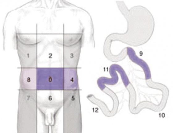 Figure 1. Calcul de l'index péritonéal selon Sugarbaker (PCI) L'abdomen est divisé en 13 régions, un score de 1 à 3 est attribué à chaque région en fonction de la taille des nodules de carcinose (1 : nodule < 0,5 cm ; 2 :0,5 mm≤ nodule < 5 cm ; 3 : nodule ≥ 5 cm). Le score maximal est de 39