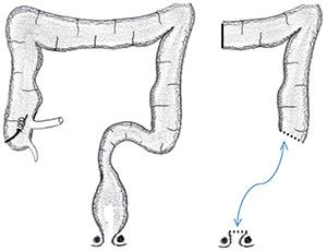 Figure 2. Représentation de l'intervention de Hartmann, avec agrafage du bas rectum, et préservation du plancher pelvien