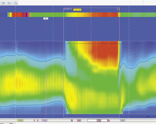 Figure 10. Lors de la manoeuvre de poussée volontaire : bande de pression positive à la partie proximale du canal anal compatible avec un prolapsus rectal intra-anal