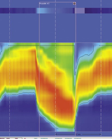 Figure 11. Lors de la poussée volontaire : descente de la zone de haute pression du sphincter anal compatible avec une descente périnéale