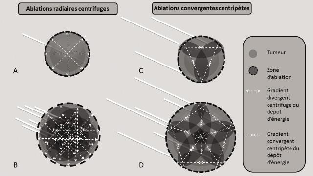 Figure 1. Stratégies de déposition in situ d'énergie pour l'ablation des tumeurs
