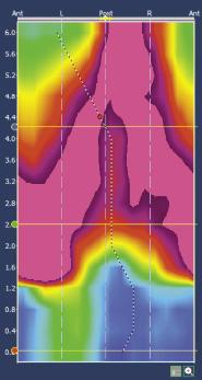 Figure 8b. Reconstruction en 2D du sphincter anal en contraction : image en « Lambda »