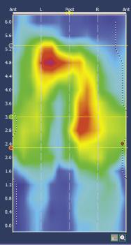 Figure 9. Pressions asymétriques compatibles avec un défect des quadrants gauches
