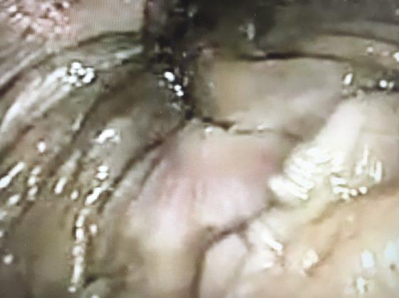 Figure 7. Fissure anale cicatrisée