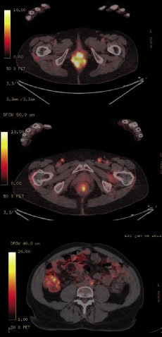Figure 1. TEP-scanner dans le cadre du bilan initial d'une tumeur du canal anal : en plus de la fixation de la tumeur primitive du canal anal, découverte d'une extension ganglionnaire bilatérale et d'une atteinte latéro-aortique