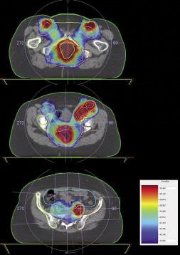 Figure 3. Préparation du traitement de radiothérapie : Dosimétrie en Radiothérapie Conformationnelle avec Modulation d'Intensité (RCMI)