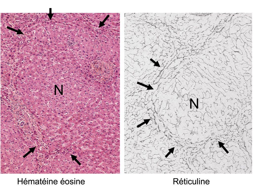 Figure 1. Lésions histologiques d'hyperplasie nodulaire régénérative