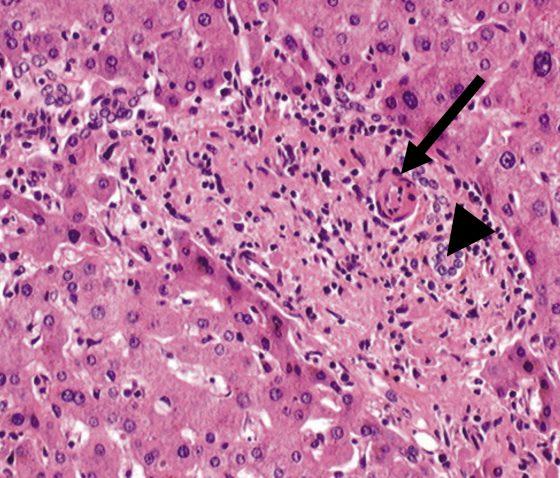 Figure 2. Lésions histologiques de veinopathie portale oblitérante