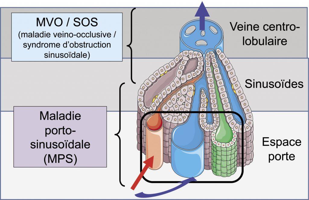 Figure 3. Schéma indiquant la localisation primitive des maladies des petits vaisseaux du foie