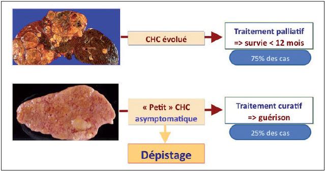 Figure 5. Bases rationnelles du dépistage du CHC