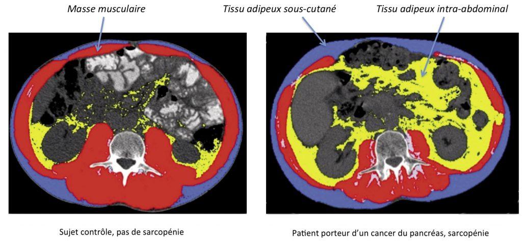 Figure 1. Coupe scannographique passant par L3 d'un sujet contrôle et d'un patient porteur d'un cancer du pancréas avec une sarcopénie