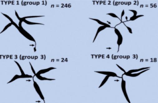 Figure 10. Différents types cholangiographiques d'atteinte biliaire de la cholangite à IgG4