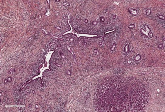 Figure 1. LPSP sur une pancréatectomie. Infiltration lymphoplasmocytaire péri-canalaire, fibrose storiform et phlébite oblitérante