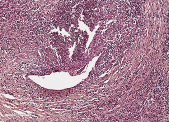 Figure 3. IDCP sur une pièce de pancréatectomie pour adénocarcinome développé sur PAI de type II associée à une RCH ancienne. Infiltration à polynucléaires neutrophiles réalisant une GEL qui détruit et ulcère un canal interlobulaire