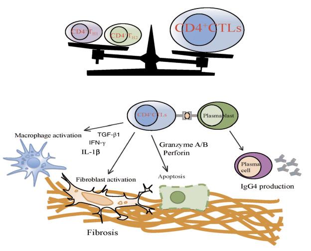 Figure 5. Schéma simplifié de la physiopathogénie de la PAI de type I. Noter que la cellule au centre du processus inflammatoire et fibrosant est ce nouveau lymphocyte T cytotoxique CD4+, qui agit par l'intermédiaire des secrétions de Granzyme A et B, de perforin et d'interferon gamma, de TGF– béta1 et d'interleukine 1béta ainsi que de l'activation du système macrophagique. Ce lymphocyte T cytotoxique est activé par des plasmablastes qui sont à l'origine de la production de plasmocytes IgG4+ qui n'ont quant à eux aucun rôle pathogène