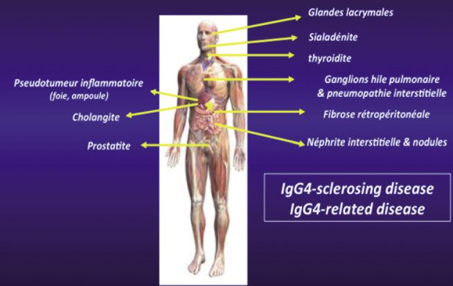 Figure 6. Rappel des principales localisations de la maladie à IgG4 qui peuvent être associées à la PAI de type I