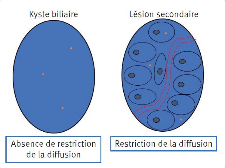 Figure 1. Illustration schématique de la restriction de la diffusion observée dans une lésion secondaire (schéma de droite) par opposition à la diffusion observée dans un kyste simple. Les protons (oranges) ont une liberté de déplacement réduite dans les lésions néoplasiques du fait d'une augmentation de la cellularité, d'une augmentation de la pression capillaire et d'une modification de l'interstitium tumoral.