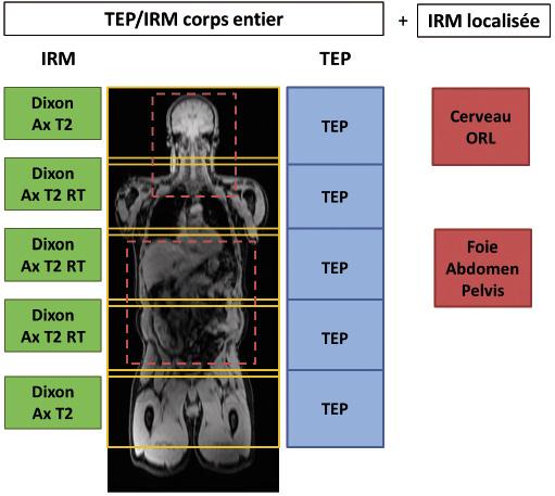 Figure 1. Proposition d'un protocole standard de bilan oncologique en TEP/IRM. L'examen corps entier est complété par une ou plusieurs acquisitions IRM plus localisées. Dixon : séquence IRM réalisée pour la génération une carte d'atténuation. Ax T2 RT : coupes axiales en pondération T2 avec synchronisation respiratoire
