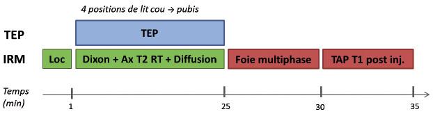Figure 2. Proposition d'un protocole d'exploration pour les bilans de récidives de cancers colorectaux. Loc : séquence Localizer de l'IRM. Ax T2 RT : Coupes axiales en pondération T2 avec synchronisation respiratoire. TAP : thoraco-abdomino-pelvien