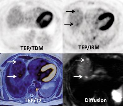 Figure 3b. Même patiente. Coupes transversales au niveau du dôme hépatique. Le TEP/TDM apparaît normal à ce niveau. Le TEP/IRM montre deux fixations focales de petite taille, dont le caractère pathologique est difficile à affirmer. Une séquence de diffusion montre clairement deux hypersignaux pathologiques en regard des deux hyperfixations. La confrontation du TEP et de la diffusion permet de renforcer la confiance dans le diagnostic de métastases hépatiques à ce niveau