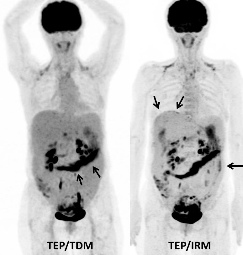 Figure 4a. Femme de 62 ans. Bilan d'extension initial d'un carcinome séreux de l'ovaire. Le TEP/TDM montre des fixations en rapport avec une carcinose péritonéale pelvienne et du grand épiploon (flèches). Le TEP/IRM réalisé juste après le TEP/TDM montre des sites supplémentaires d'atteinte péritonéale, dans la région péri-hépatique et la gouttière pariéto-colique gauche (flèches)